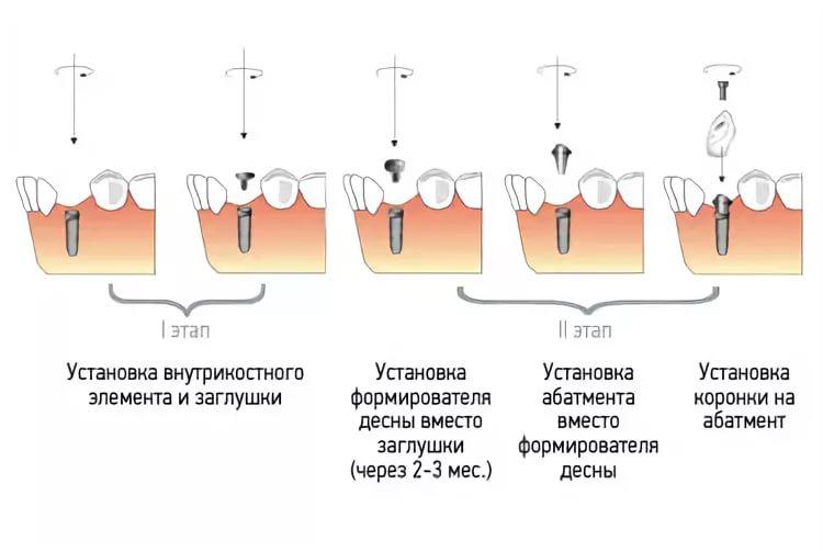 Как ставят имплантанты зубов и больно ли их ставить, обзор цен