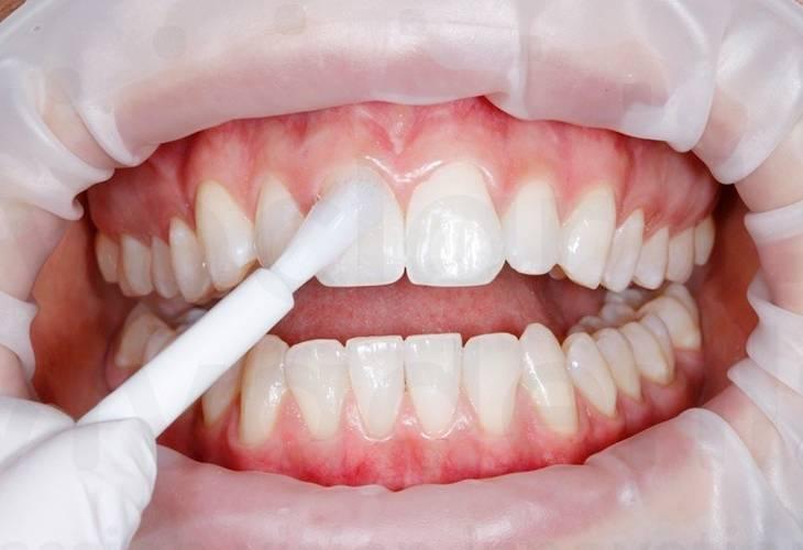 Препараты для реминерализации эмали зубов. реминерализация зубов — для чего нужна процедура — лучшие препараты для лечения