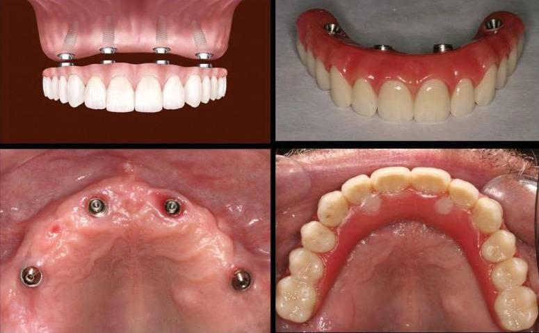 Почему болит имплант зуба через год после установки?