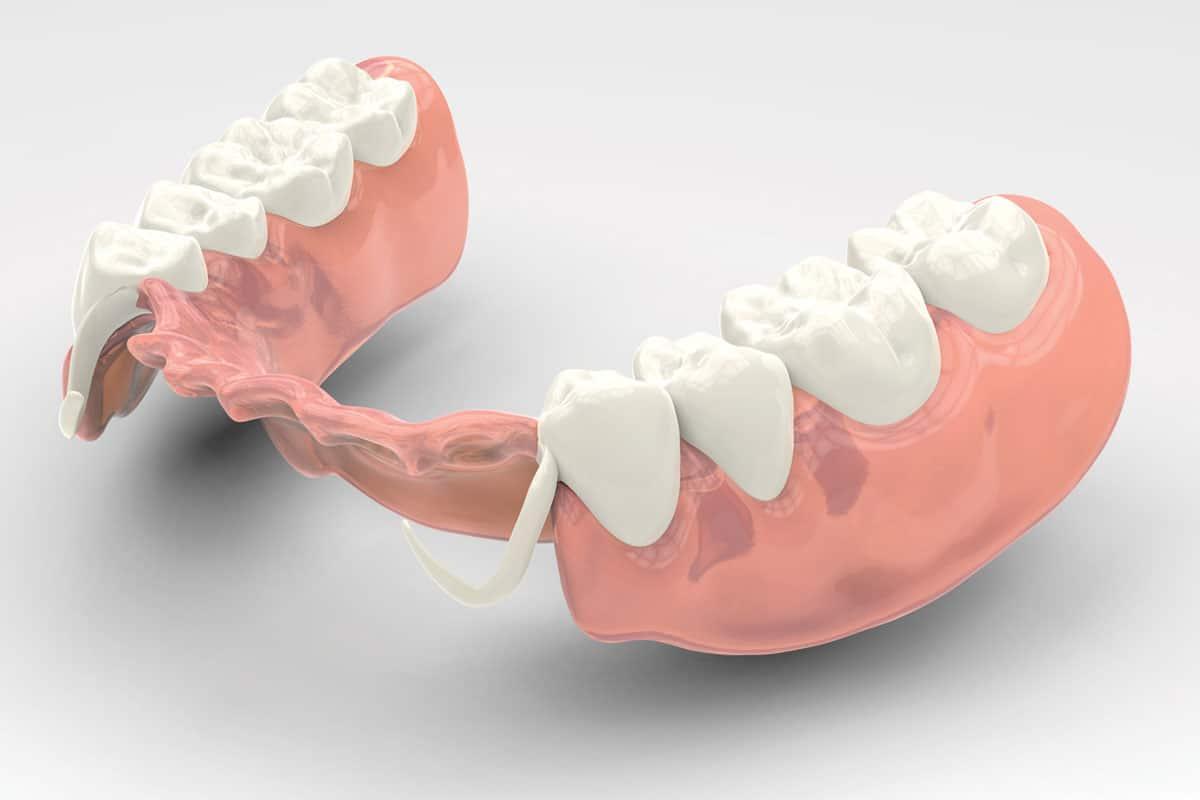 Какие зубы лучше вставить?