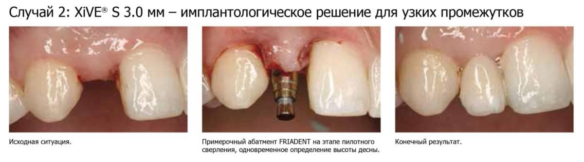 Срок службы имплантов зубов – действительно ли он длительный?