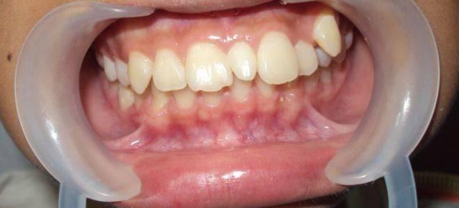 Понятие сверхкомплектных зубов (полиодонтии, гипердонтии) у человека: фото и лечение аномалии