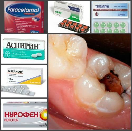 Как снять зубную боль в домашних условиях: средства, советы
