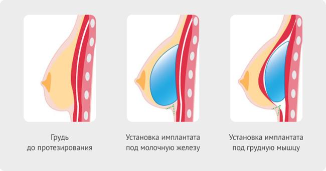 Изменения в грудных железах на ранних сроках беременности