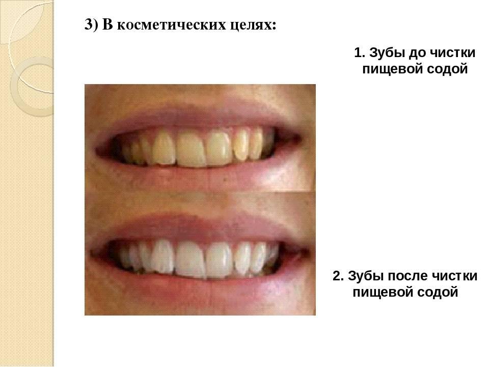 Как чистить зубы пищевой содой
