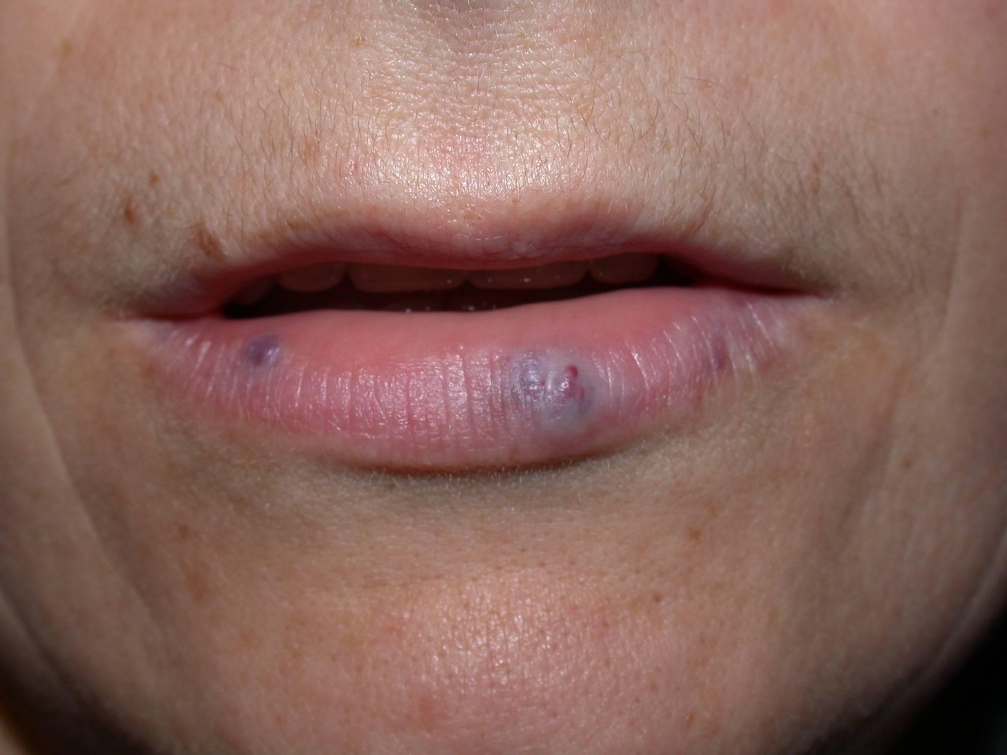 Пигментные пятна на губах