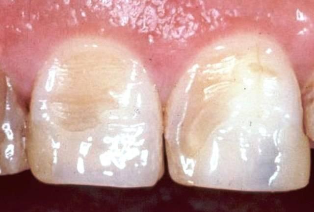Эрозия зубной эмали: каковы клинические признаки, причины и лечение?