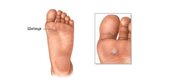 Шипица на ноге. как избавиться, фото, лечение, удаление лазером, жидким азотом