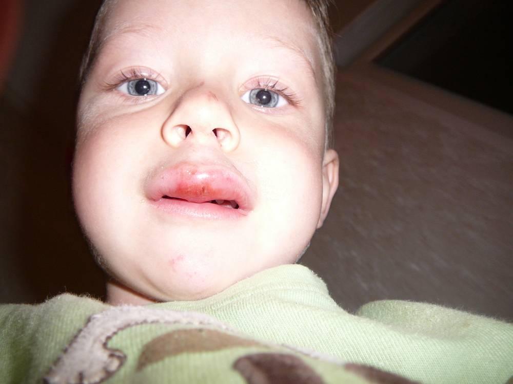 Что делать, если ребенок ударился губой и она опухла