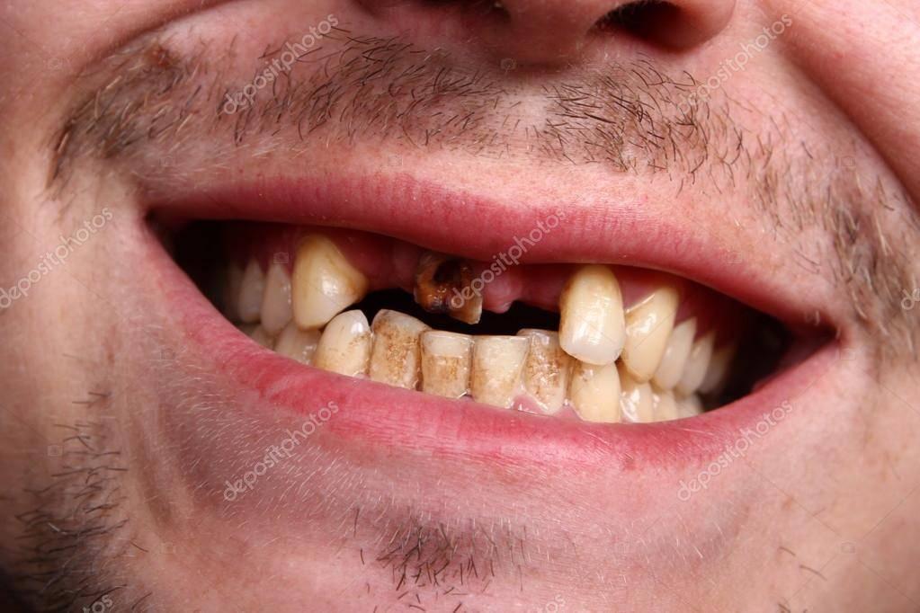 Гнилые зубы последствия для организма