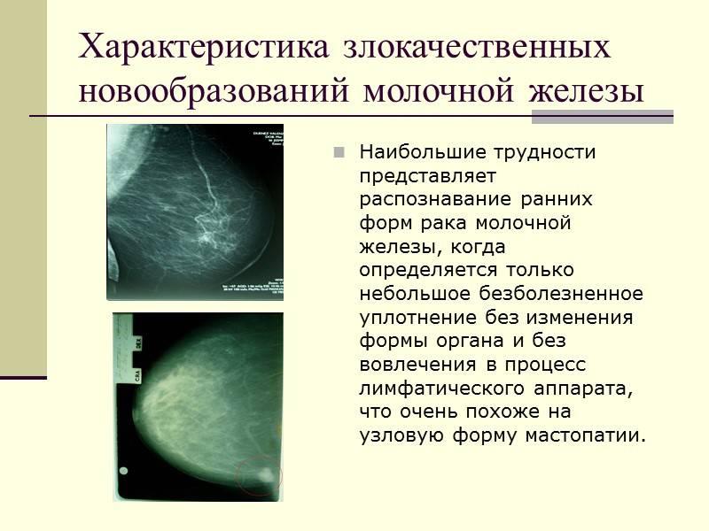 Причины возникновения и лечение узлового образования молочной железы