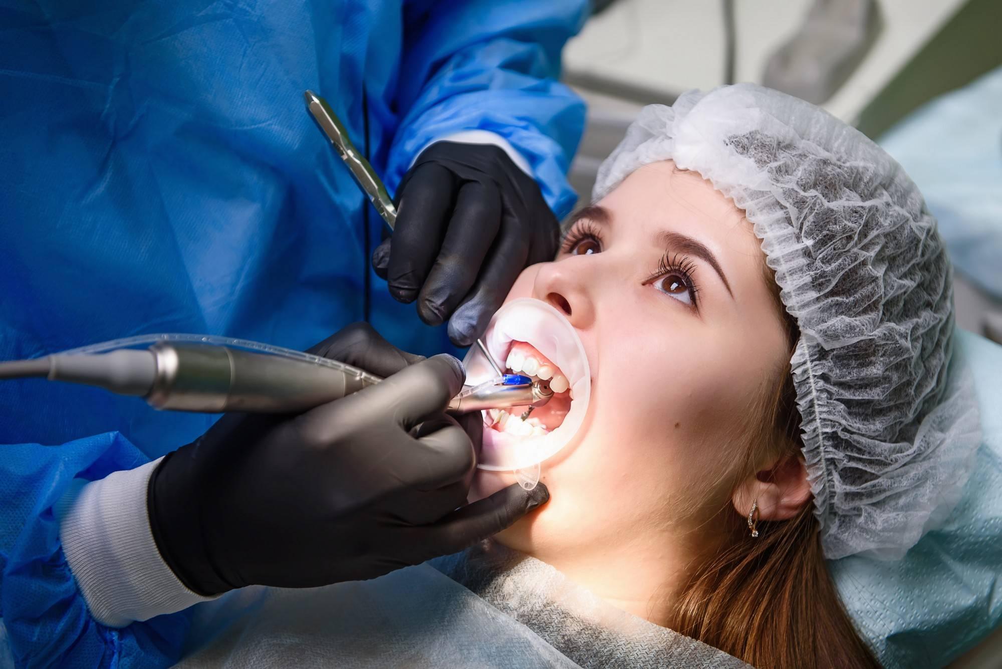 Как можно избавиться от кариеса на зубах: лечение в домашних условиях народными средствами и в клинике