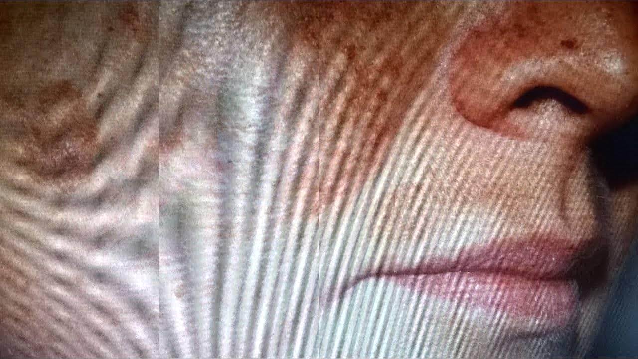 Убираем навсегда пигментные пятна на лице