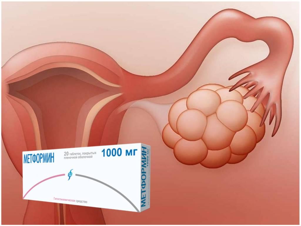 Методы лечения синдрома поликистозных яичников