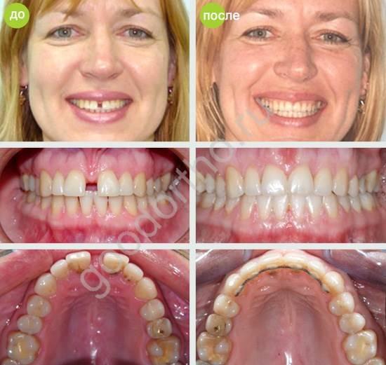 Истинная и ложная диастема. почему появляется диастема и как убрать щель между зубов