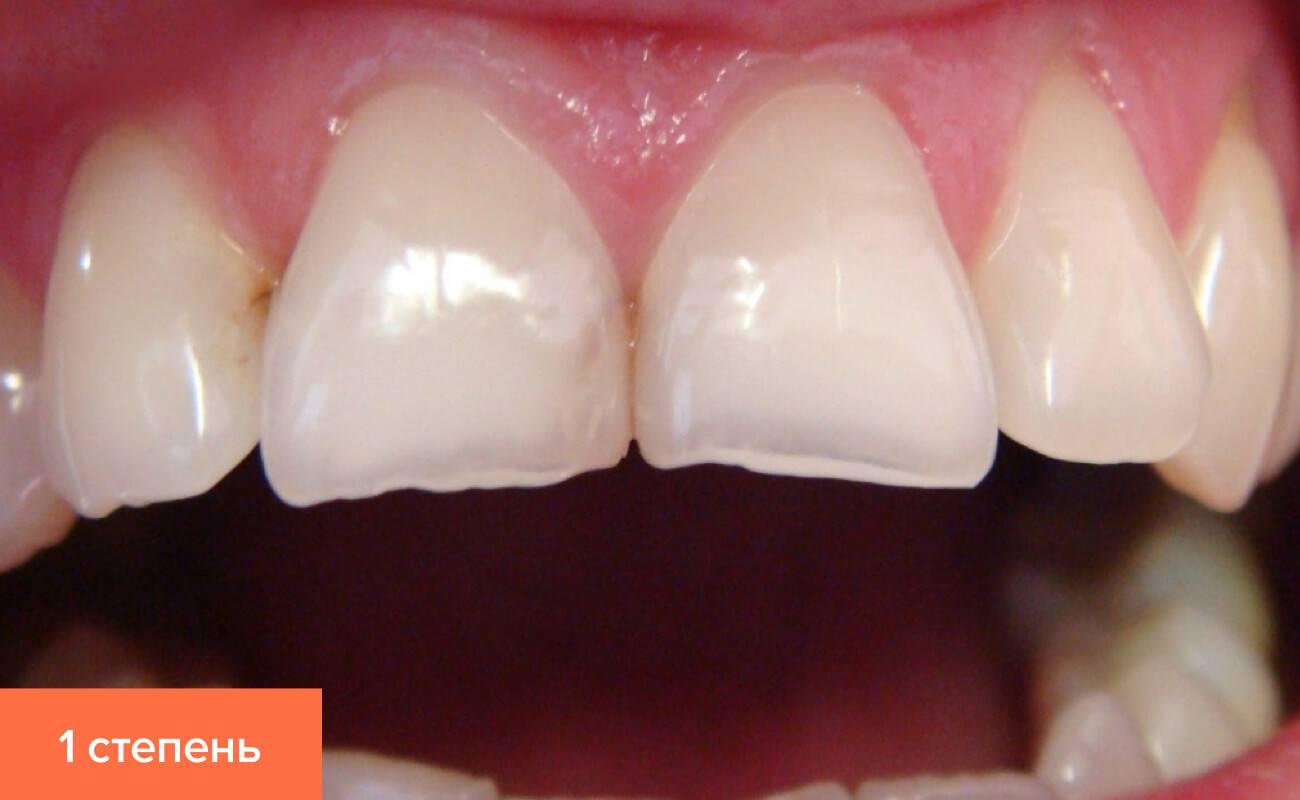Причины патологической стираемости зубов