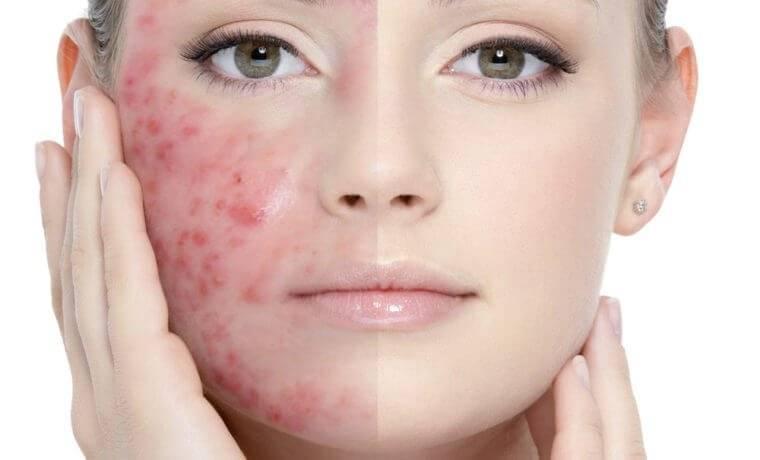 Проблемная кожа: основные правила и средства ухода