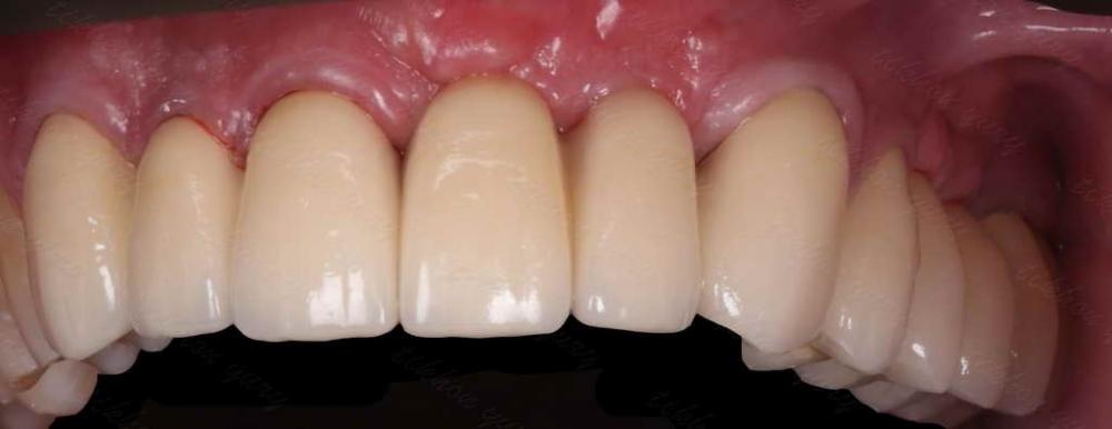 Что может вызвать аллергию на зубные протезы? - смотреть видео