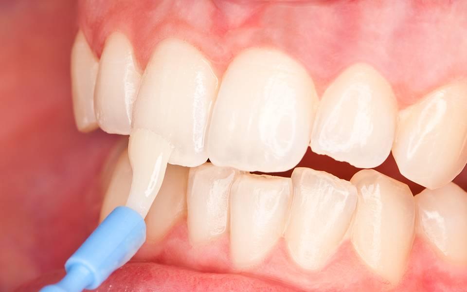Все о реминерализующей терапии зубов