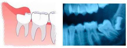 Почему может болеть десна возле зуба, что делать, какие меры предпринять в домашних условиях?