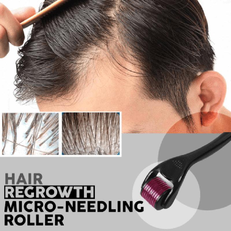 Мезороллер для волос в домашних условиях — как использовать против выпадения волос