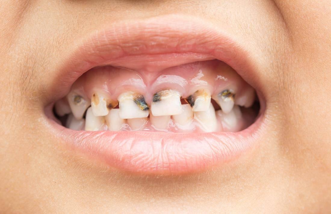 Из-за чего возникает гниение зубов и стоит ли паниковать?