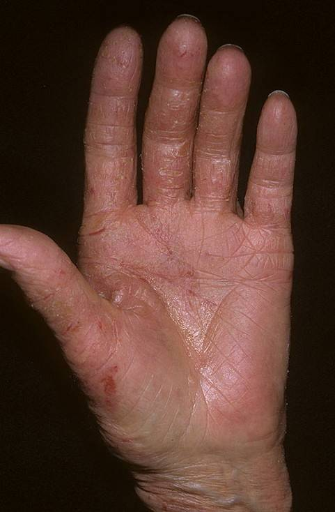 Истинная экзема на руках и кистях рук