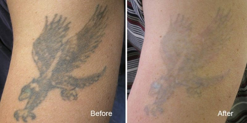 Как будет выглядеть кожа после лазерного удаления тату