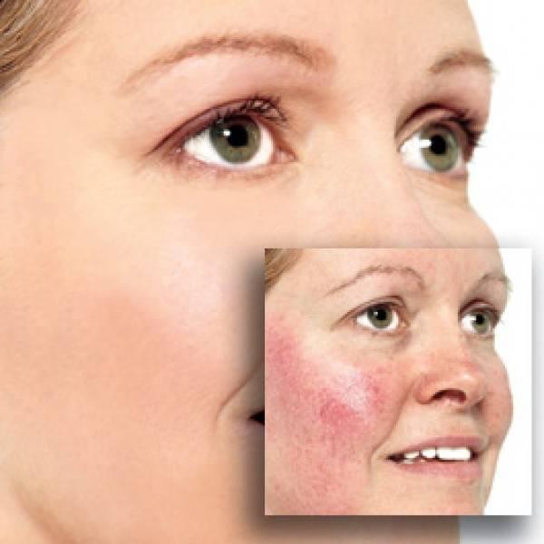 Чем лечить купероз на лице: спектр аптечных препаратов, салонные процедуры и возможности домашних средств