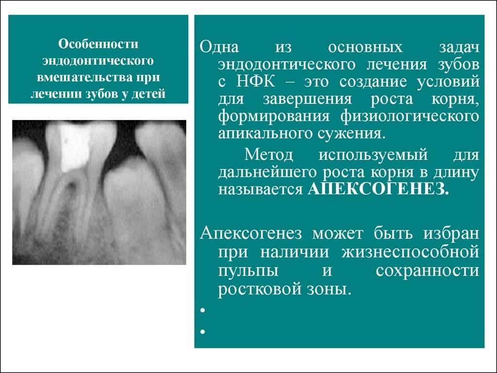 Периодонтит у детей: причины, виды, диагностика, способы лечения