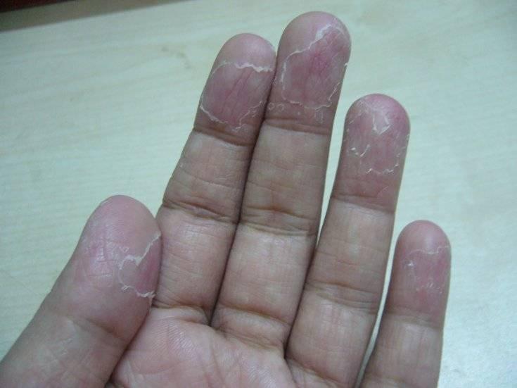 Если замучили трещины на руках – как лечить народными средствами