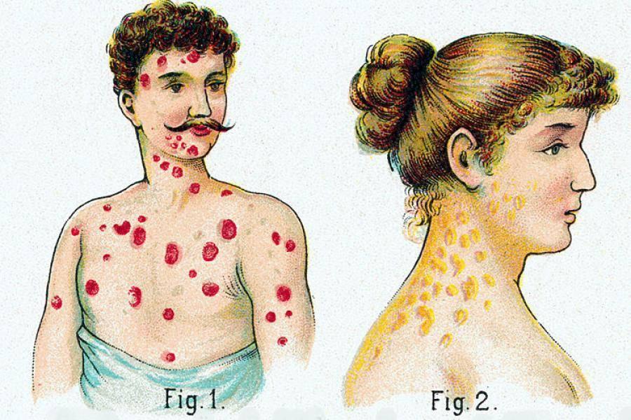 Как выглядит сыпь при разных периодах сифилиса: описание и фото