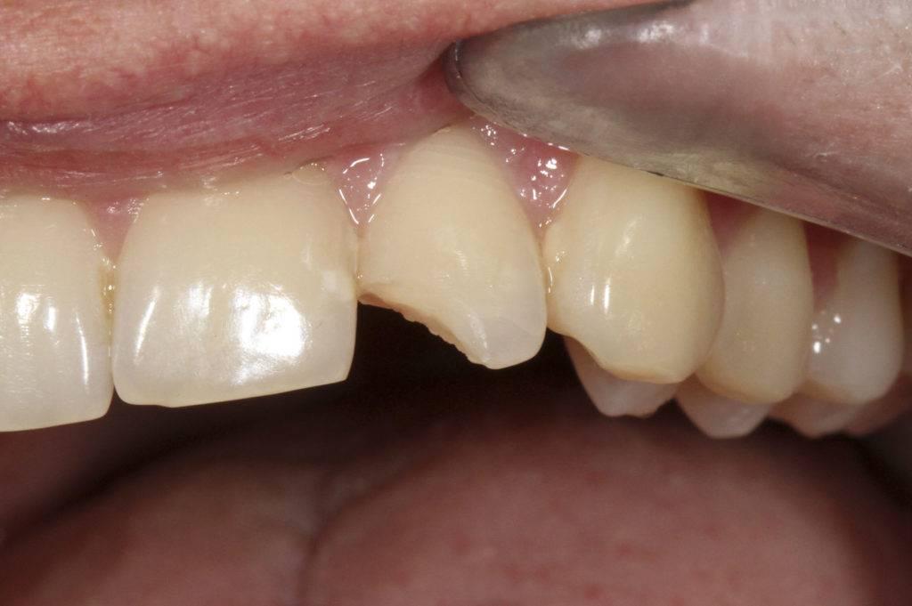 В чем причины разрушения зубов и подлежат ли они восстановлению?