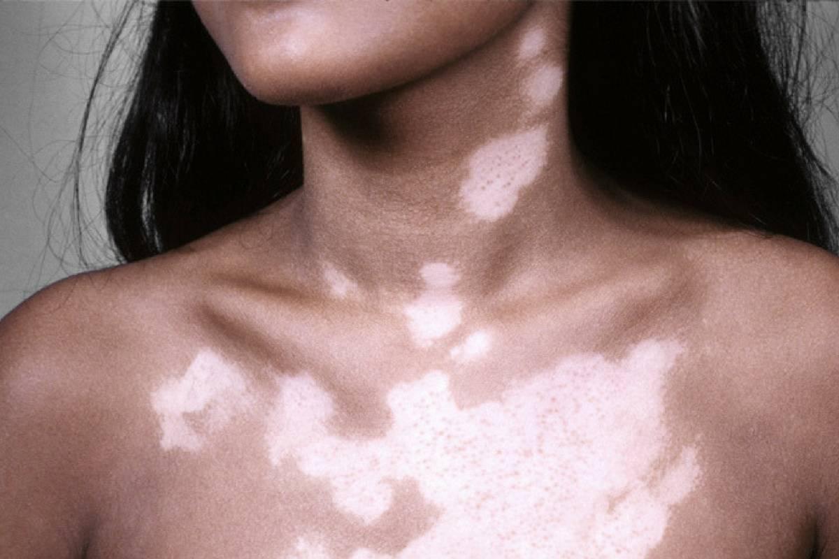 Почему на лице появляются белые пятна и как от них избавиться