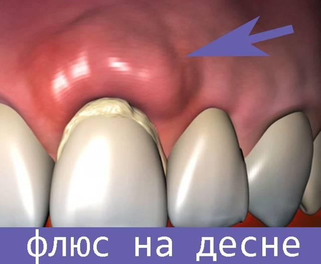 Причины появления абсцесса зуба: симптомы, лечение и профилактика гнойного воспаления с фото