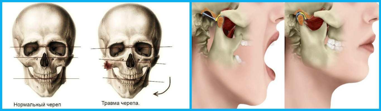 Боль при открывании рта в челюсти возле уха