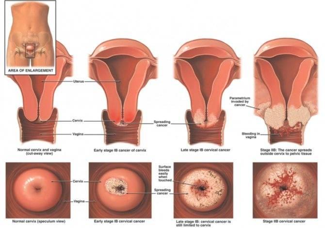 Эрозия шейки матки у нерожавших женщин. особенности лечения