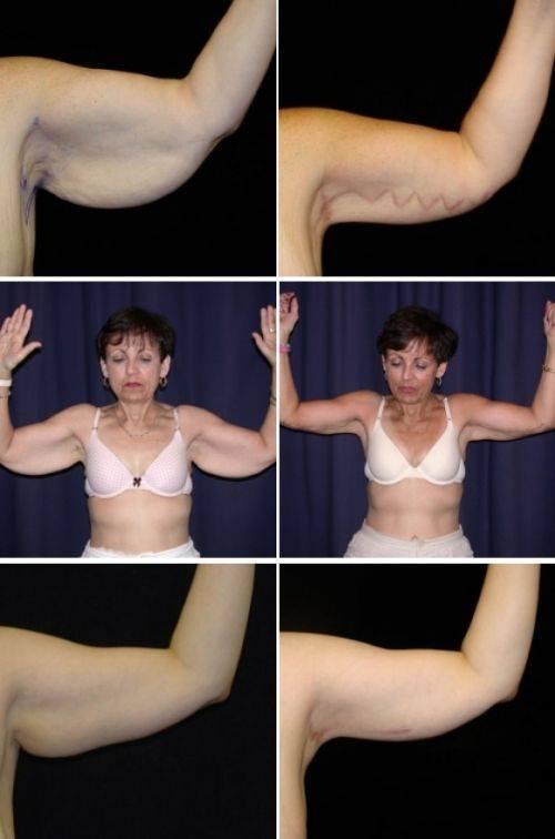 Подтягиваем тело и избавляемся от дряблости кожи: проверенные способы