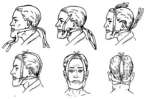 Как и чем кормить пациента с переломом челюсти
