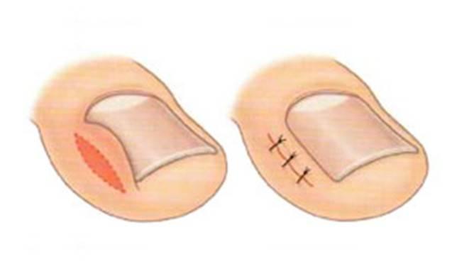 Перевязка после удаления вросшего ногтя