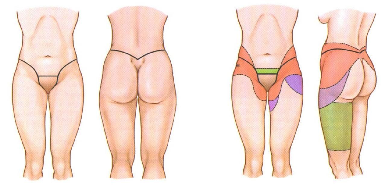 Торсопластика - круговая подтяжка тела