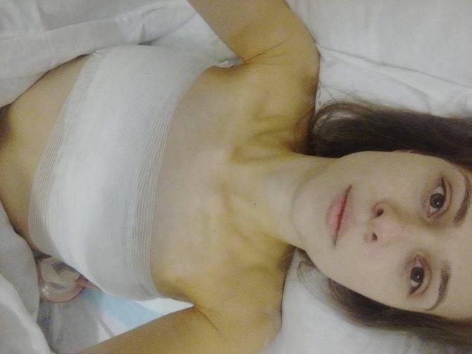 Реконструкция груди: самые важные подробности