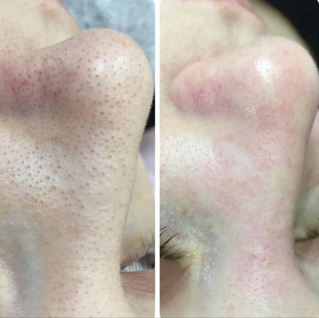 Атравматическая чистка лица — кому показана, как проходит