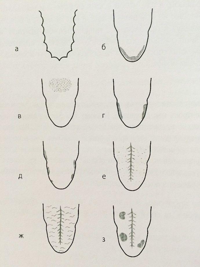 Язык с отпечатками зубов по краям причины