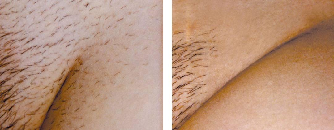 Возможно ли бритье зоны бикини без раздражения?
