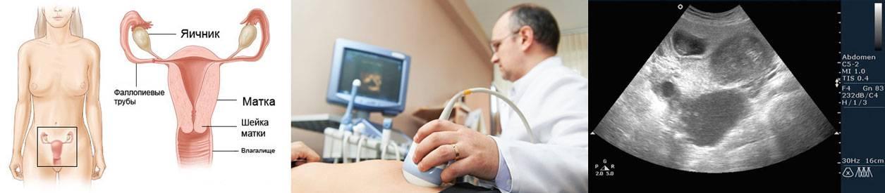 Может ли гинеколог определить беременность на раннем сроке при осмотре