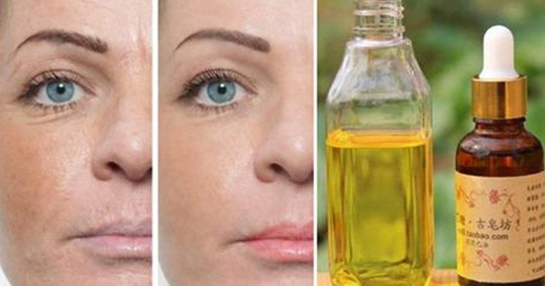 Очищаем кожу от прыщей касторовым маслом — рецепты