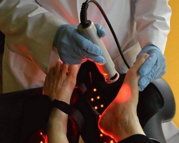 Удаление стержневой мозоли в косметическом салоне лазером, жидким азотом, в домашних условиях