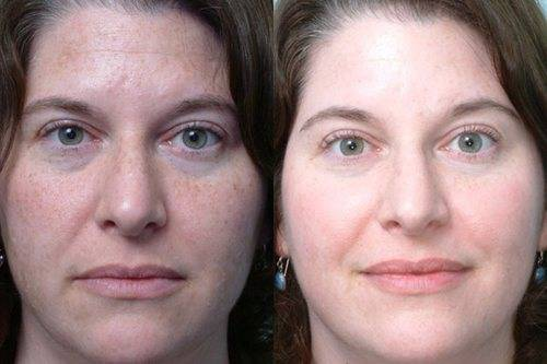 Гликолевый пилинг лица — отзывы и результаты с фото до и после