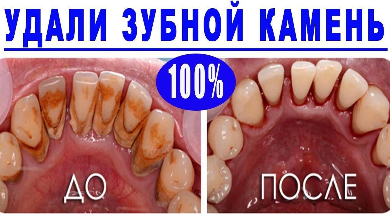 Самые эффективные способы удаления зубных камней в домашних условиях